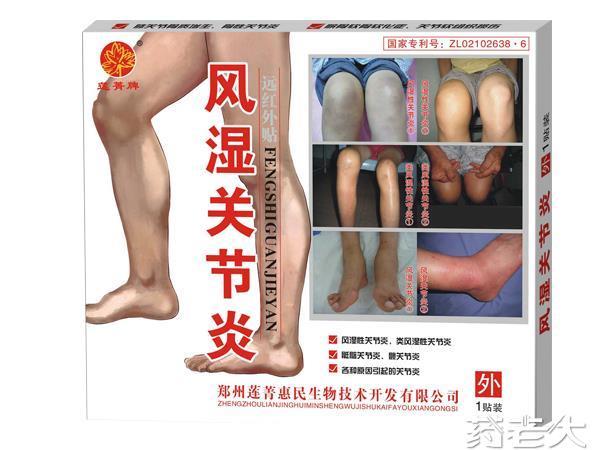 风湿关节炎(外用、镇痛、贴)
