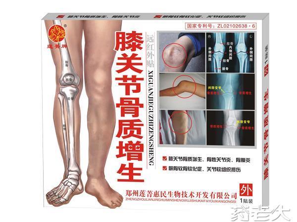 膝关节骨质增生(外用、镇痛、贴剂)